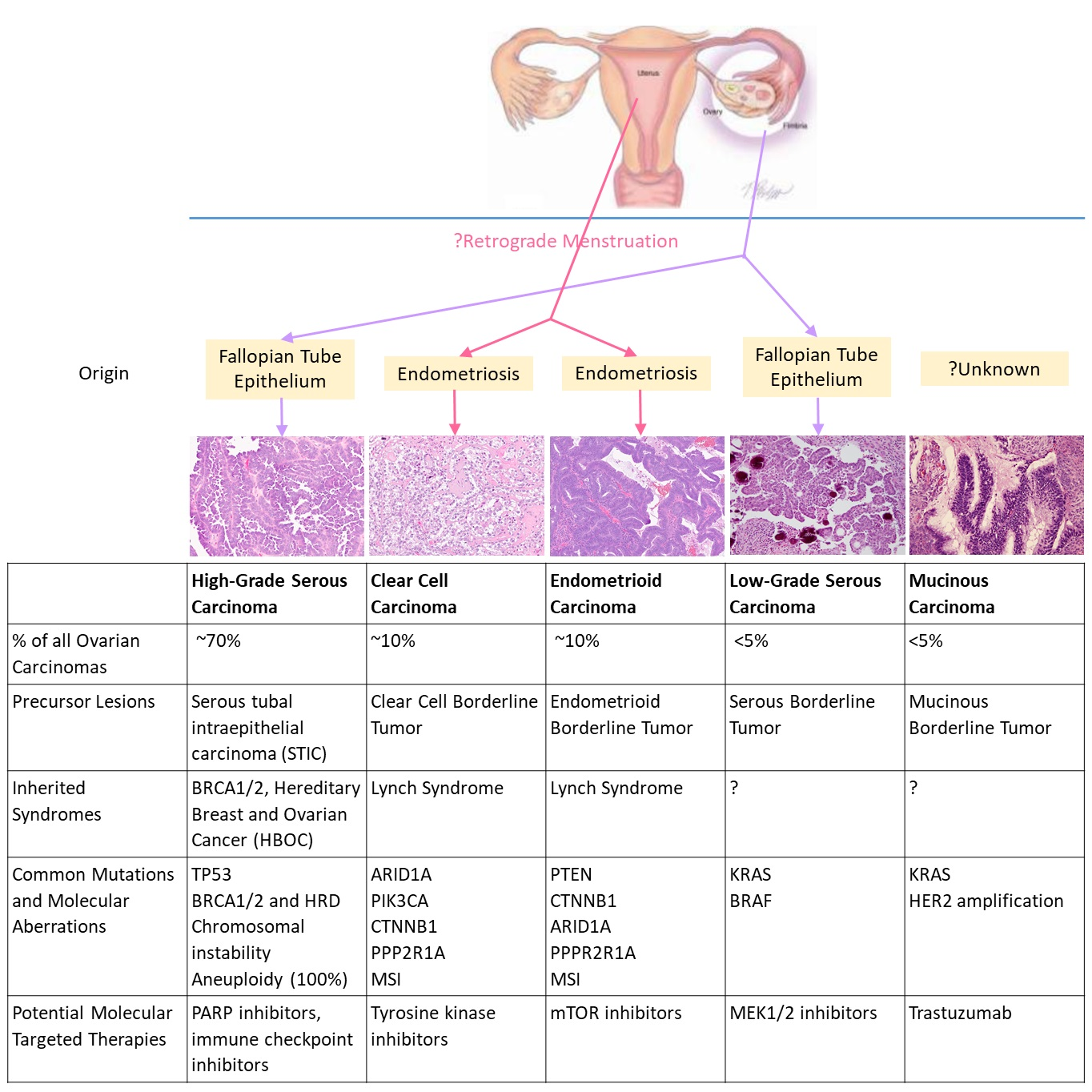 2 histological classification of ovarian carcinoma