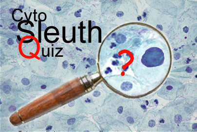 CytoSleuth Quiz